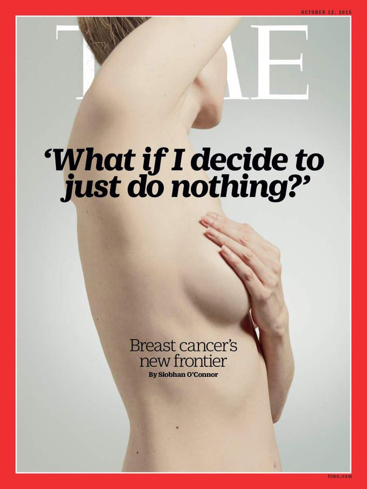 TIME's new cover: Why doctors are rethinking breast-cancer treatment