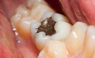 Amalgam entfernen lassen, Quecksilber ausleiten