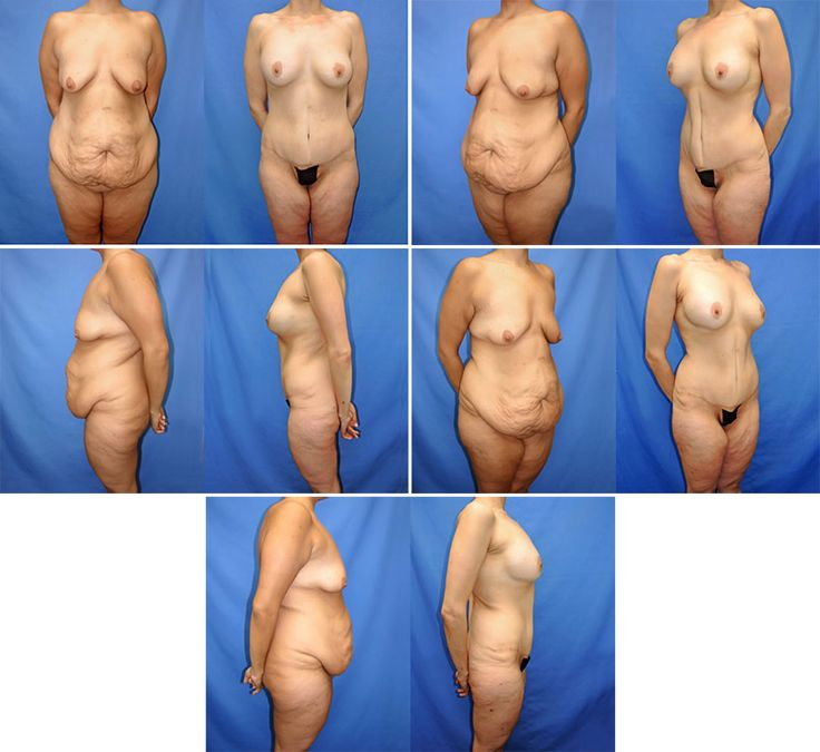 Bend breast lift south