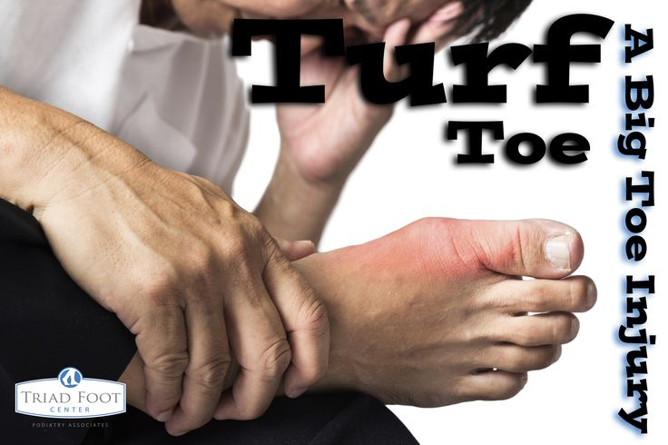 If you're an athlete, you may have big toe pain, especially if you play football, soccer or participate in gymnastics. Learn more about Turf Toe and how it's caused: http://www.triadfoot.com/2015/05/26/turf-toe-big-toe-injury/ #feet #podiatry #footpain #sports #football #soccer #gymnastics #run #running #turftoe
