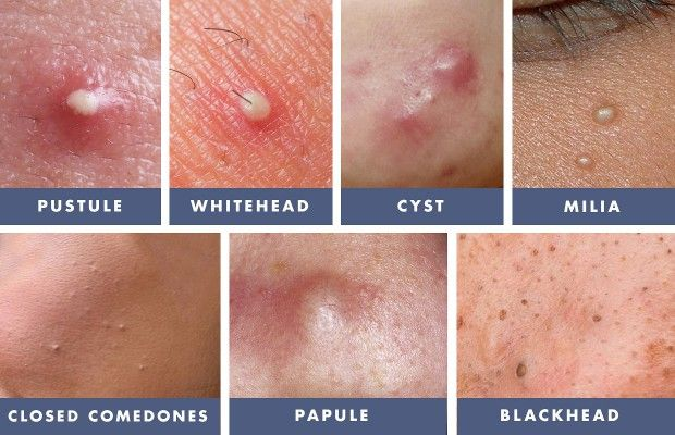 Zit Care Kit | Helpful info in 2019 | Types of acne