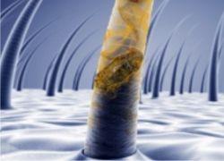 Nadmierne wypadanie włosów – jak temu zaradzić? - Artykuły - Biotechnologia.pl - łączymy wszystkie strony biobiznesu