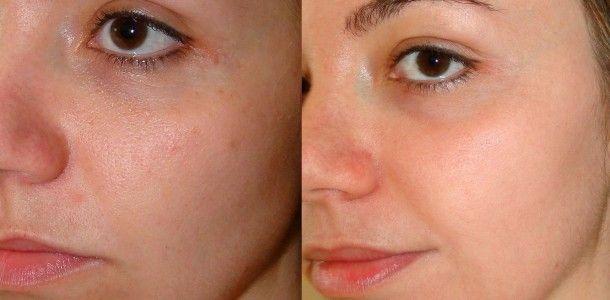 anúncios A maioria das pessoas quer ter uma pele saudável, hidratada e livre de todo tipo de imperfeição. No entanto, nossa pele está exposta todos os dias a uma grande quantidade de fatores que podem maltratá-la e causar inúmeras alterações, que podem afetar a sua aparência e beleza. A exposição ao sol, a contaminação, a …
