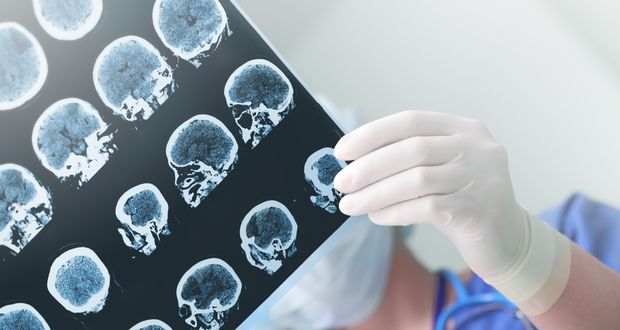 Our Parkinson's Place: New spin out to investigate decade's worth of neur...