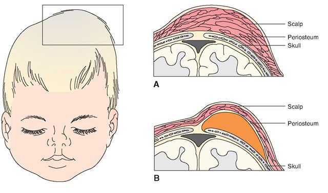 (A) Caput succeda-neum: From the pressure of the birth canal, an edematous area is present beneath the scalp. Note how it crosses the midline of the skull. (B) Cephalhematoma: A small capillary beneath the periosteum of the skull bone has ruptured, and blood has collected under the periosteum of the bone. Note how the swelling now stops at the midline. Because the blood is contained under the periosteum, it is necessarily stopped by a suture line.