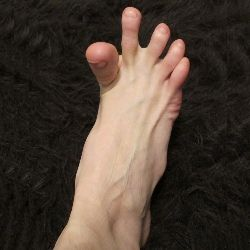 Cure for foot cramp