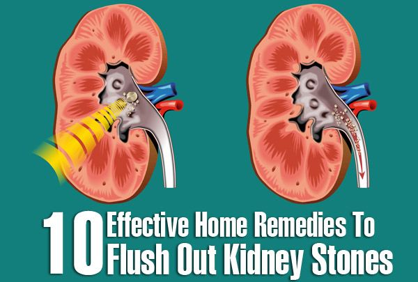 Top 10 Effective Home Remedies To Flush Out Kidney Stones. Stones in kidney have become quite common these days. This is seen in human body because of genetic or environmental factors. Kidney stones can appear in both men and women, but it is mostly prevalent in men. You must consult a doctor immediately if you believe that you are suffering from kidney stones. Below are the top 10 home remedies for kidney stones for reducing or flushing out the stones in your body.