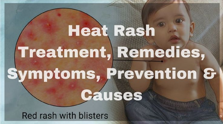 All the detail about the ways to get rid of heat rash or prickly heat with all the symptoms, causes, treatment, remedies that can be applied easily.