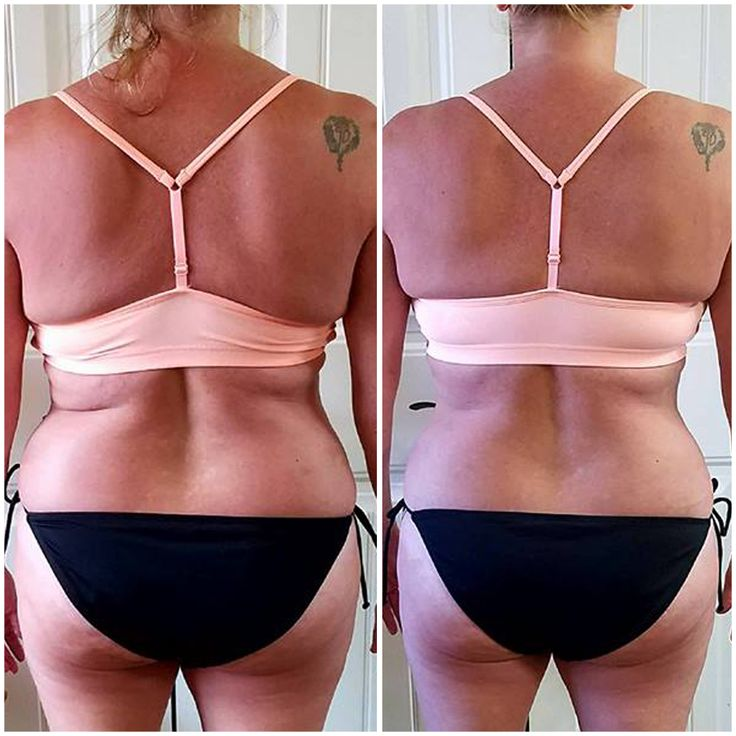 Did you know that you can contour and shape your body? That's right! While genetics play a huge part in our appearance, sometimes your fascia can trap fat into pockets or contort your posture. Releasing the tight fascia can help smooth your silhouette and give you that figure you've been wanting! This user is loving her results and flaunting her figure!
