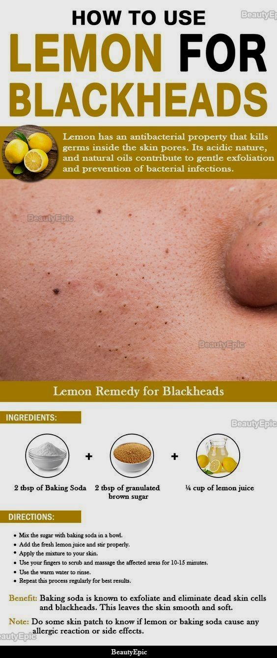 How to Use Lemon for Blackheads skin #beauty