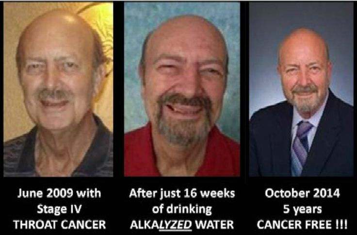 Alkaline Water Kills Cancer Cells and Heals Your Body! Learn How To Make It…