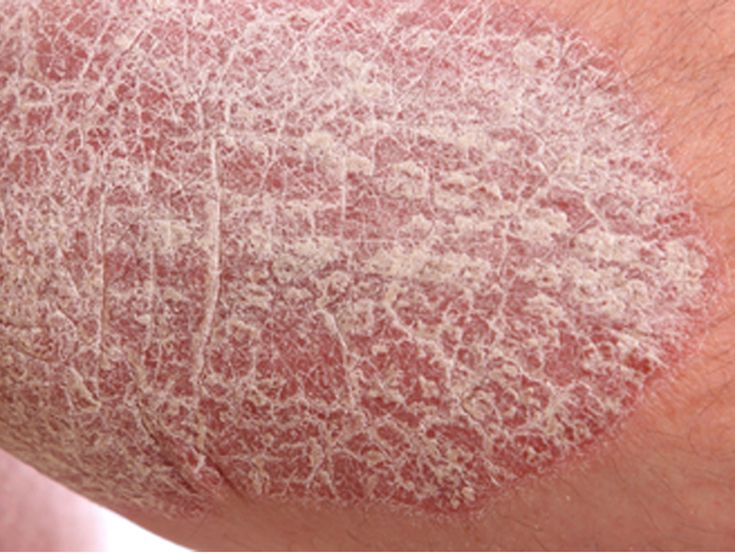 These are simple ways to bust stress and may help keep psoriasis flares at bay 2