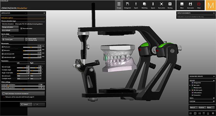 Software-Module CAD/CAM Virtual Articulator