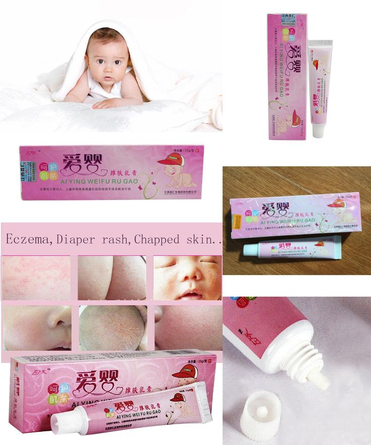 [Visit to Buy] Safety 2pcs Children baby eczema cream Antibacterial Skin Itch oniment baby allergy Dermatitis &Eczema Red Fart baby skin care #Advertisement