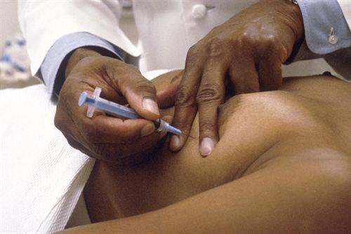 Diseñan un test para reducir el uso de quimioterapia en cáncer de mama