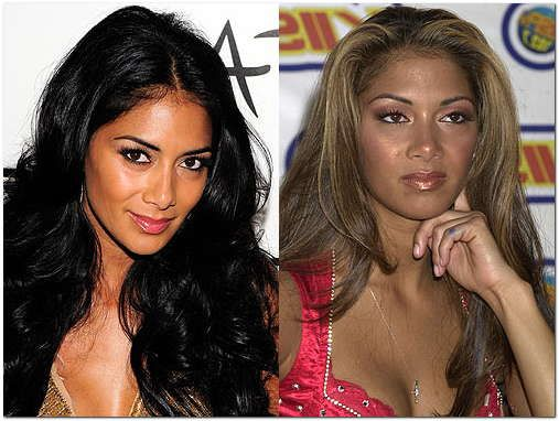 Nicole Scherzinger Plastic Surgery Before Amp After