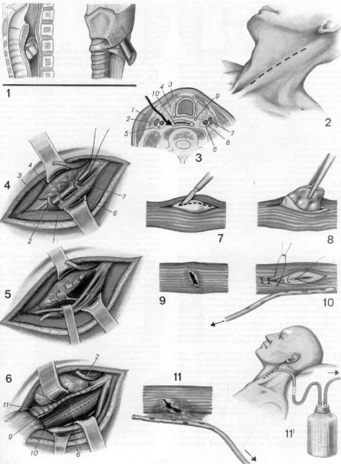 Повреждения грудного отдела пищевода