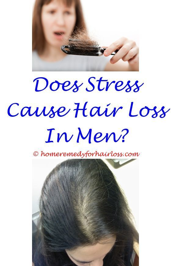 young male hair loss causes  best mild shampoo hair loss.trt hair loss preventi