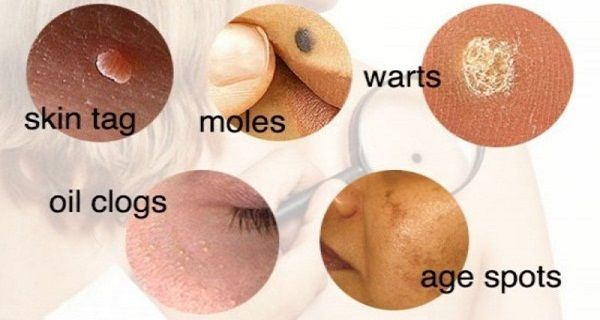 Moles, skin tags, clogged pores or skin breakouts are the most common skin conditions which can be caused by lifestyle changes or hormonal imbalance. And, although there are thousands of skin and beauty care products, they can be very expensive…