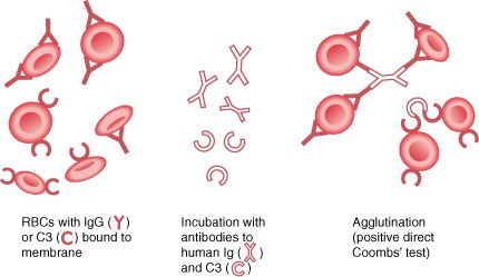 Autoimmune Hemolytic Anemia. And info on warm and cold agglutinins. Occurring either above or below 37'C.