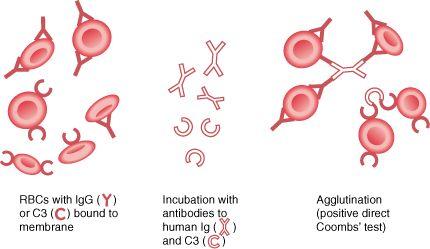 Autoimmune Hemolytic Anemia - Hematology and Oncology - Merck Manuals Professional Edition