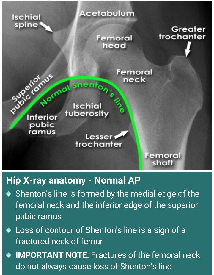 Hip x ray..loss of Shenton's line is a sign of fx neck of femur.