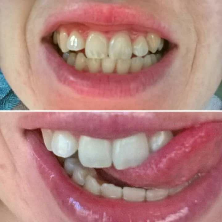 Valkaisevalla hammastahnalle saadaan hyviä tuloksia. Whitening Toithpaste