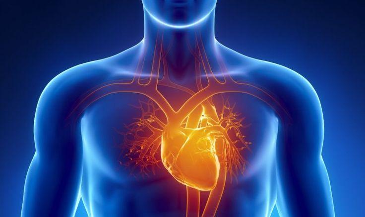 Herzinfarkt (Myokardinfarkt): Grafik eines Körpers mit Darstellung Herz