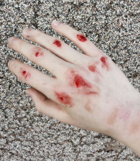 blood guts fingers and toes