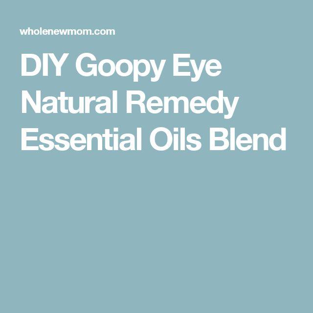 DIY Goopy Eye Natural Remedy Essential Oils Blend