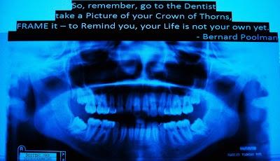 DIA 192: Arrancar os dentes do siso: perder o medo e encontrar estabilidade