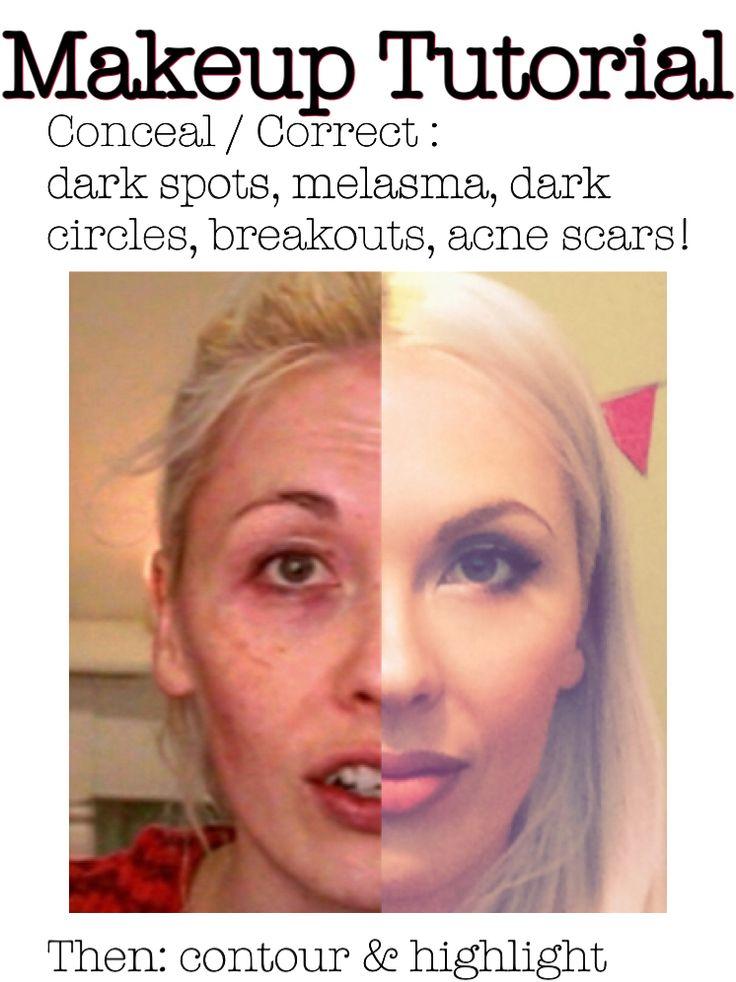 Makeup Tutorial Acne Coverage Beginners