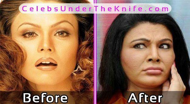 Rakhi Sawant Before After Plastic Surgery #celebsundertheknife #celebs #celebrity #plasticsurgery #celebritysurgery