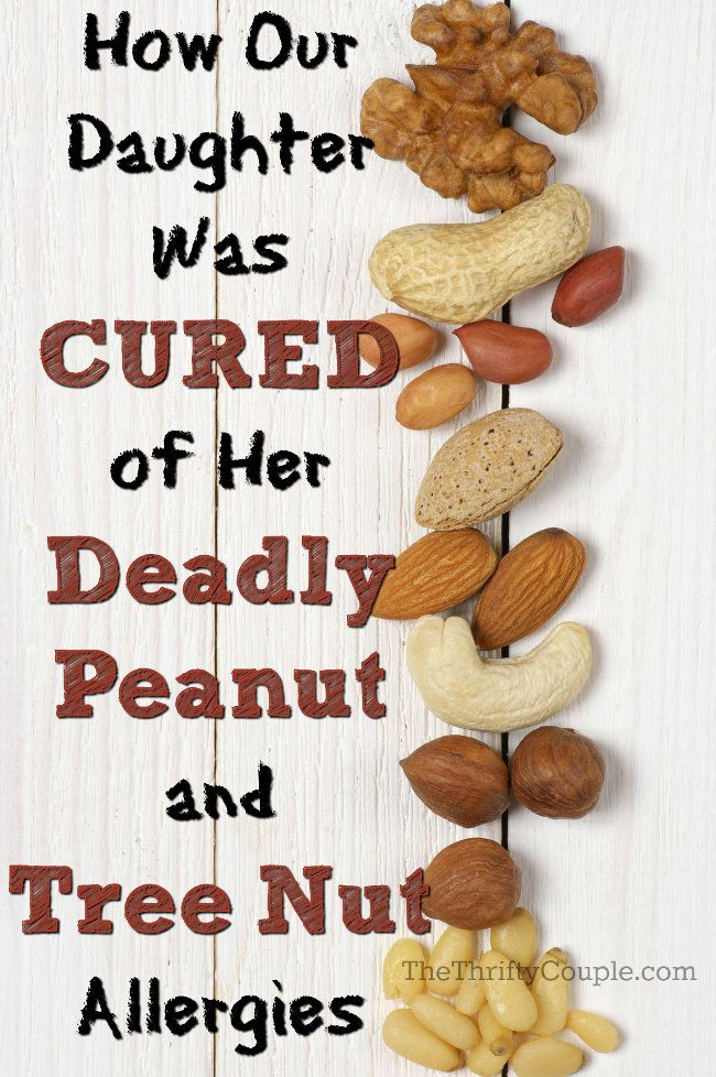 How Our Daughter Was Cured From Her Deadly Peanut and Treenut Allergies