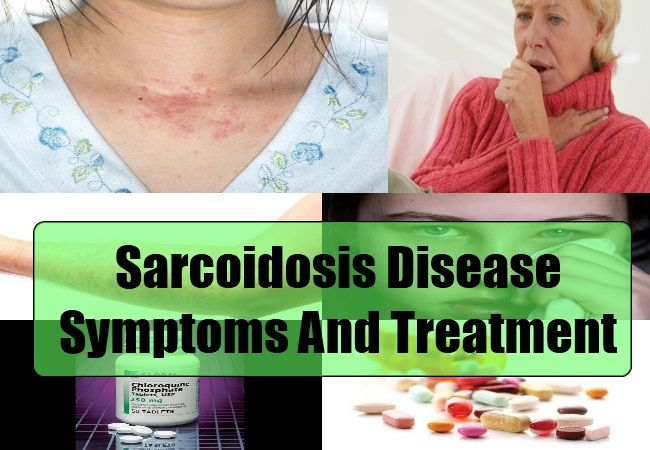 Common Symptoms Of Sarcoidosis Disease - Sarcoidosis Disease Treatments | Health Care A to Z