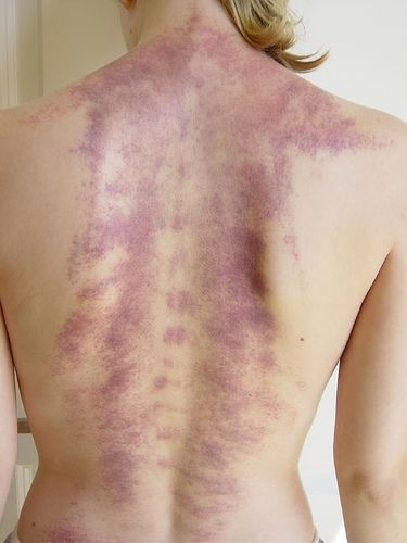 Gua Sha is an East Asian healing technique. Gua means to scrape or rub. Sha is the term used to describe Blood stasis in the subcutaneous tissue before and after it is raised as petechiae. When a person has Sha they will feel pain, aching or stiffness in the muscles. Gua Sha can be used to remove blood stagnation that blocks the surface tissues impeding organ and immune function.
