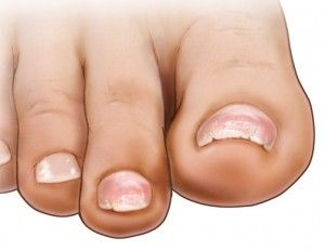 Your toenails reflect your overall health. If you have chipped, brittle or peeling toenails it could be more then just cosmetic. Find out why and what is going on.