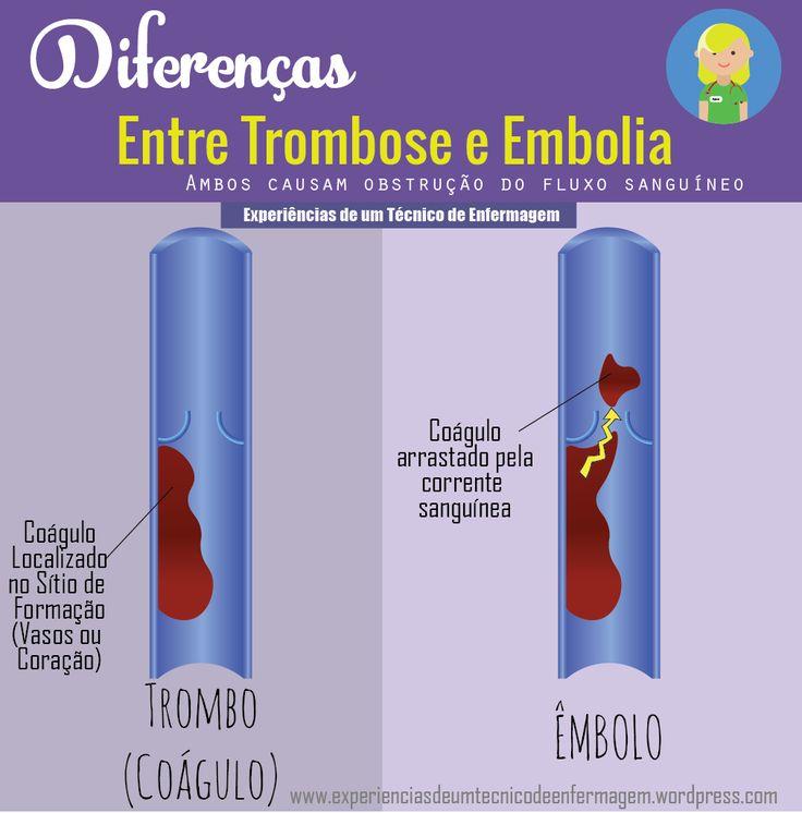 A Trombose e a embolia parecem, aos olhos do leigo, dois nomes diferentes da mesma doença. Existe alguma diferença entre elas? Atrombose é um componente do sangue que é formado em vasos sanguíneos…