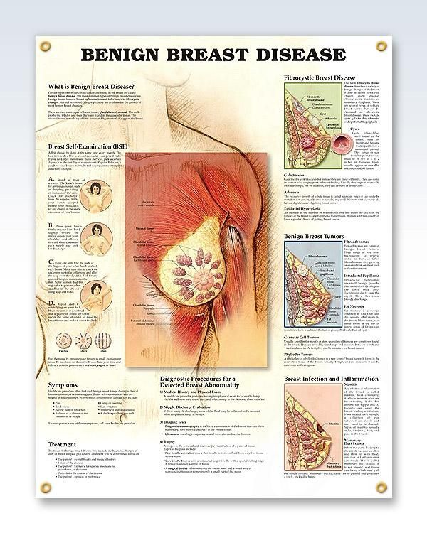 Vistoso Anatomía Del Brest Modelo - Anatomía de Las Imágenesdel ...