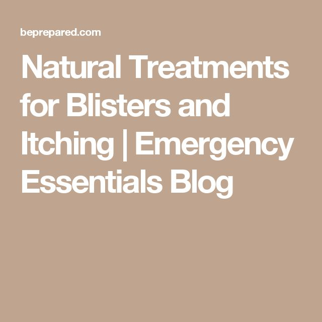 Natural Treatments for Blisters and Itching | Emergency Essentials Blog