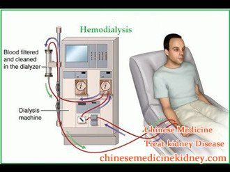 What Is The Expectancy Life For Dialysis Patients With Diabetes