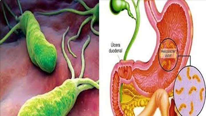 y el sistema inmunologico te protegen pero cuando esta vence puede provocar gastritis crónica, inflamaciones intestinales, e incluso cáncer gástrico.