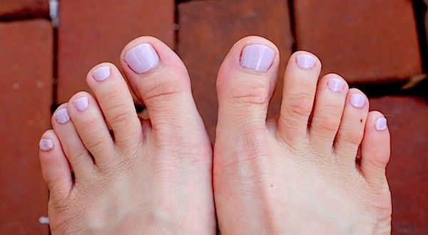How to remove calluses naturally. http://www.healthdigezt.com/how-to-remove-calluses-naturally/