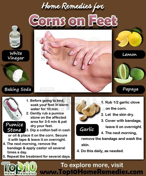 Prev post1 of 3Next Corns are small circles of hard, thickened skin that develop when the skin is exposed to excessive pressure or friction. Corns most often develop on the feet, especially on the tops and sides of the toes, soles of your feet and even between the toes. They can also develop on other