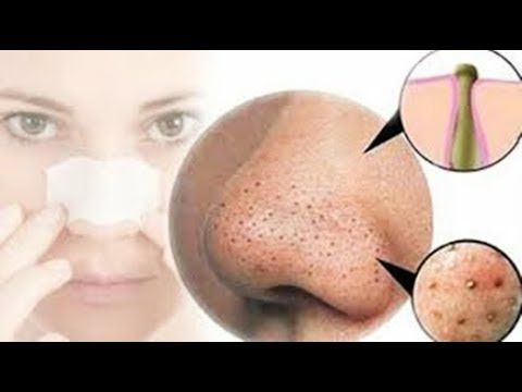 How To Get Rid of Blackheads On The Nose Fast -Blackheads Egg White Mask