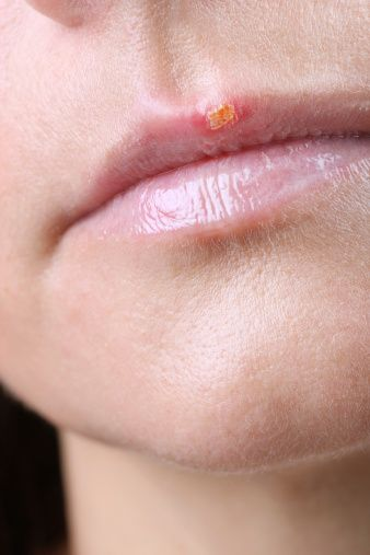 Though there are a few factors that doctors will use to distinguish cold sores and fever blisters, they are essentially the same thing.