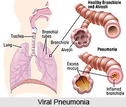 Major types of Pneumonia include Bacterial pneumonia, Fungal Pneumonia, Idiopathic interstitial pneumonia and viral. To know more visit: #health #fitness #treatment