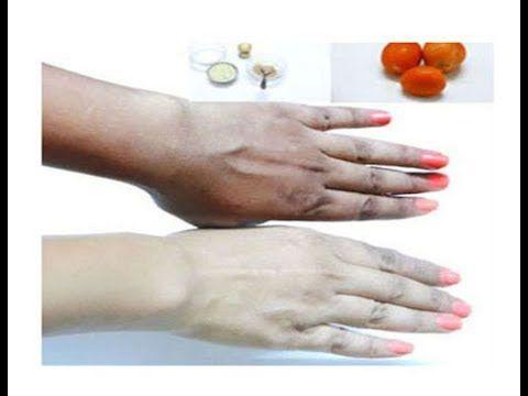 COMO CLAREAR a pele em 3 dias: pernas, mãos e pescoço: clarear a pele naturalmente: DIY - YouTube
