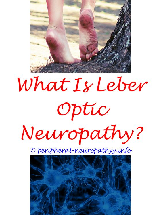 diabetic peripheral neuropathy statistics - pemf peripheral neuropathy.sensory peripheral neuropathy treatment auditory neuropathy spectrum disorder audiogram lithium toxicity peripheral neuropathy 5882828997