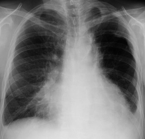 How does pulmonary aspiration kill someone?